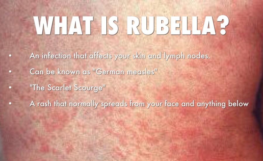 Bulan Kampanye Imunisasi Measles Rubella MR
