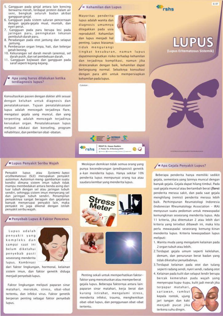 Brosur Penyakit Lupus, PKRS Hasan Sadikin Bandung