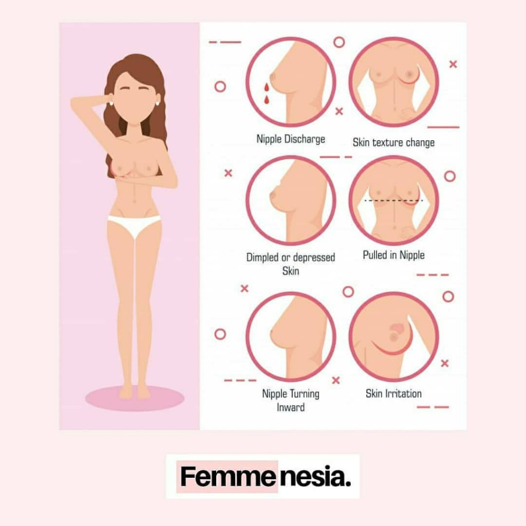Kanker Payudara - Femmenesia