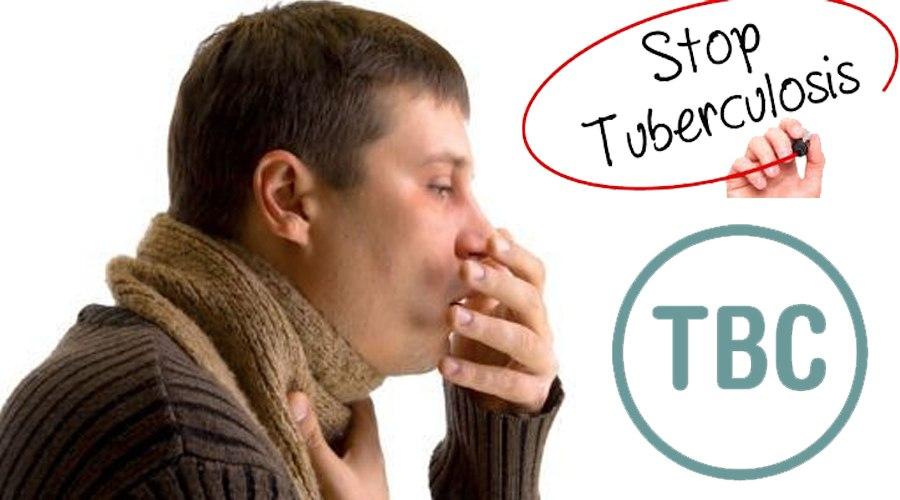 Indonesia Peringkat Kedua Penderita Tuberculosis Tertinggi di Dunia